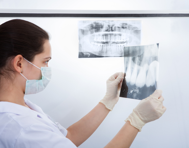 Dental X rays San Fernando Valley